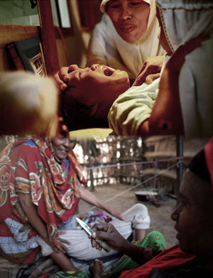 Mutilación Genital Femenina: Una Lacra Social A Gran Escala